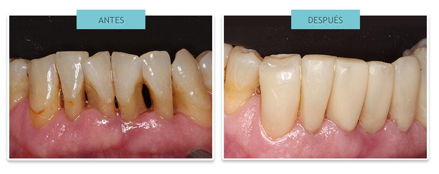 estética dental: Cerrar troneras