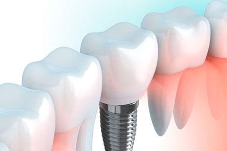 Clínica dental, implantes dentales