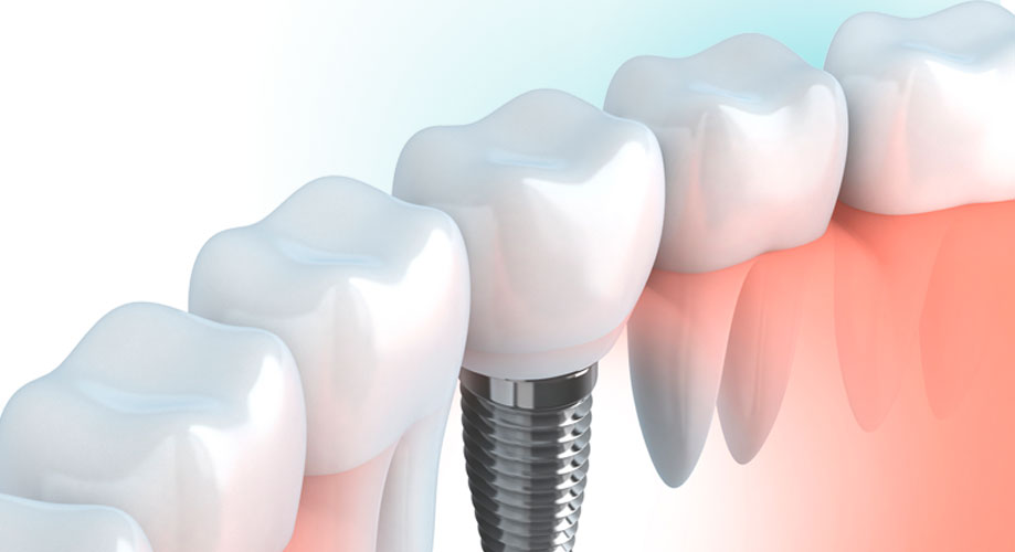 cirugía e implantes dentales