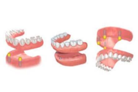 tipos de implante dental Arganda