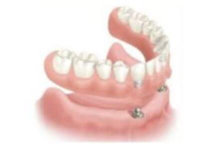 cómo colocar un implante dental Arganda