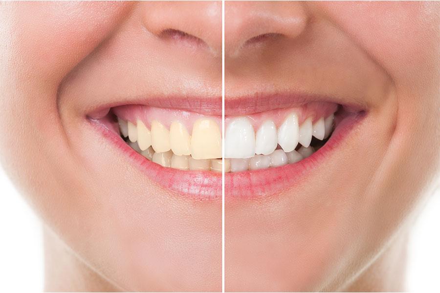 Sensibilidad dental después de un blanqueamiento dental
