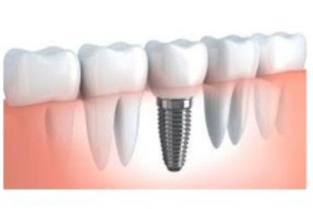 Tornillo de implante dental roto