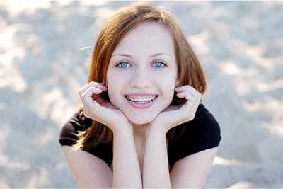 ortodoncia carillas dentales