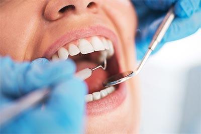 dientes incluidos, dientes impactados, dientes retenidos