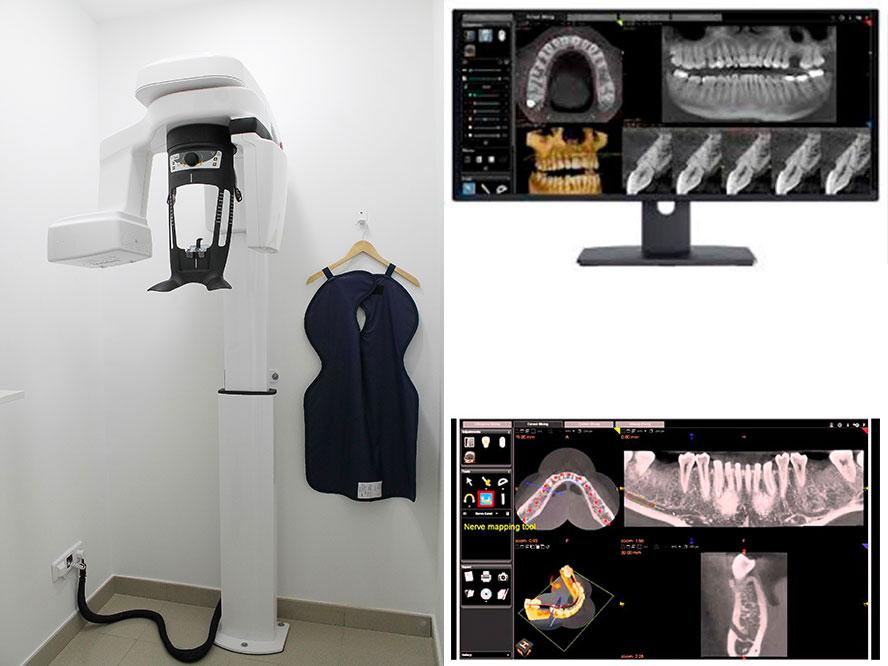 Equipo TAC dental 3D Acuadental Arganda del Rey