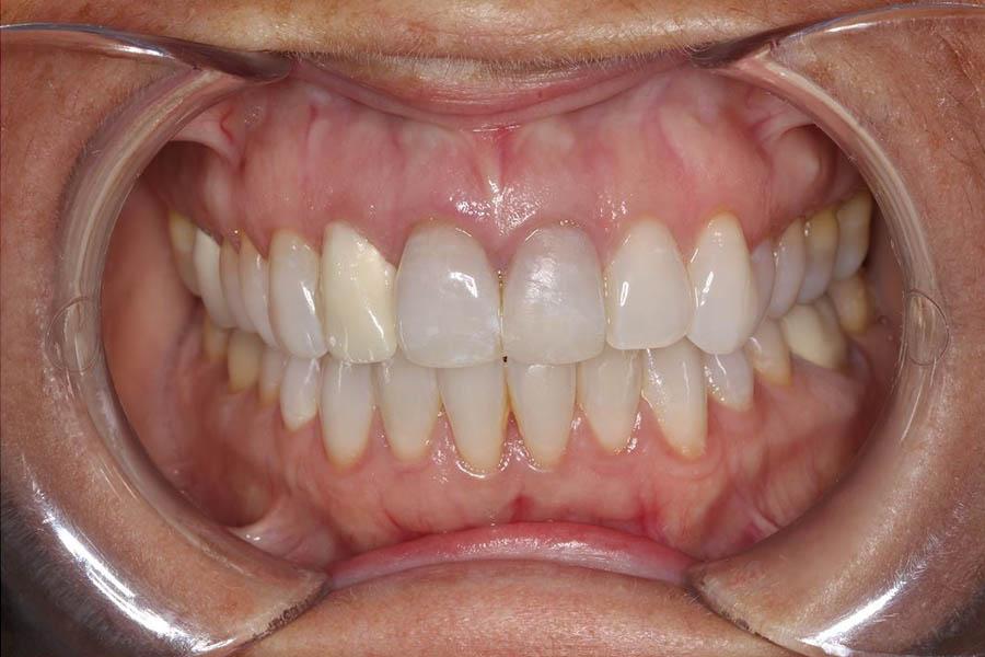 Foto antes del tratamiento de estética dental