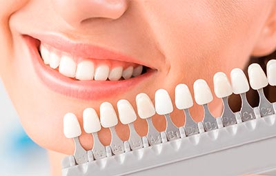 Carillas dentales en Arganda del Rey